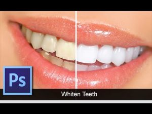 How To Whiten Teeth With Photoshop Post Production Photo Editing